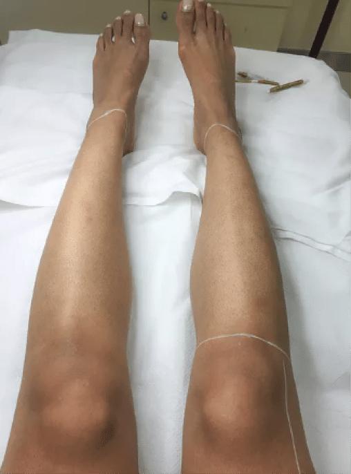 kaya-ultima-laser-hair-removal3