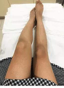 kaya-ultima-laser-hair-removal5