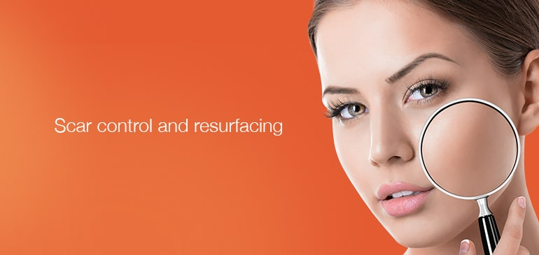 Scar Control and Resurfacing